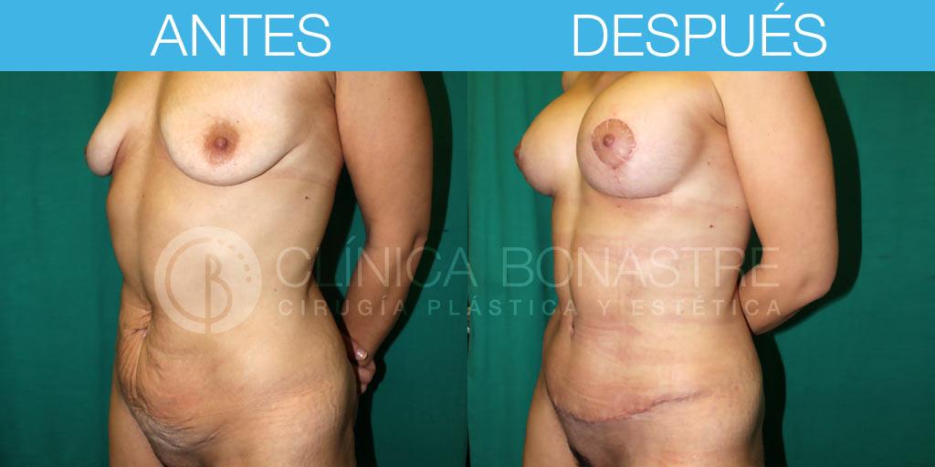 Abdominoplastia y mastopexia con implantes de 280cc
