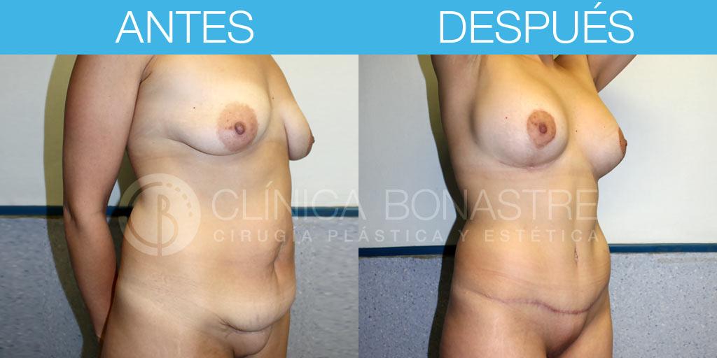 Abdominoplastia y mastopexia con implantes de 325cc