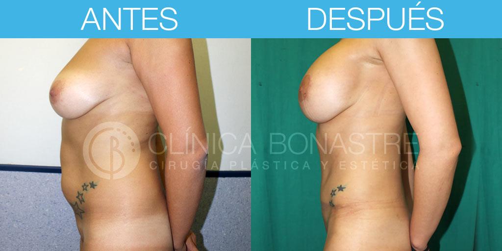Abdominoplastia y mastopexia con implantes de 350cc