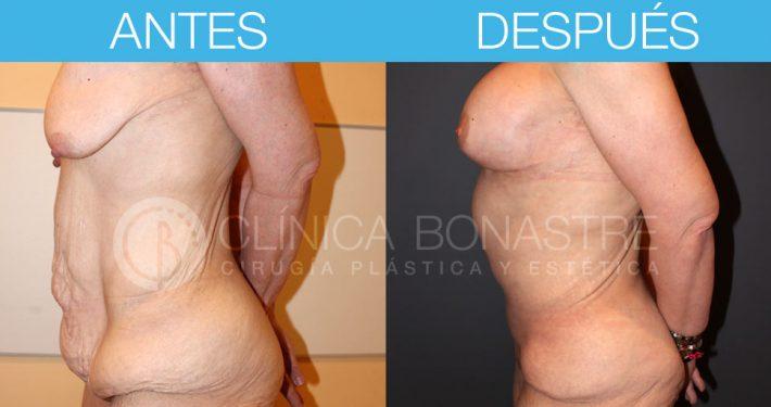 Abdominoplastia y mastopexia con implantes de 300cc