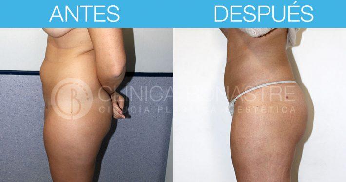 Liposucción flancos, abdomen y muslos