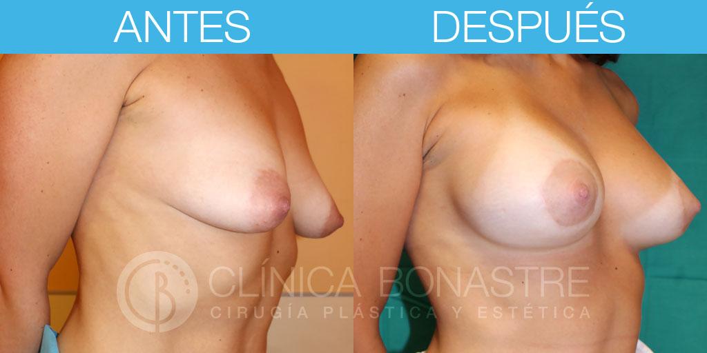 Mama tuberosa e implante de aumento anatómico de 290cc