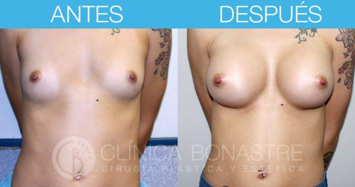 Mamoplastia de aumento, implante anatómico de 370cc