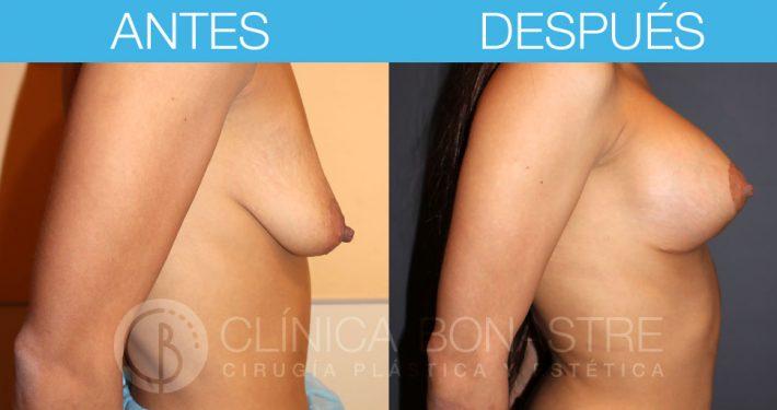 Mastopexia con implantes redondos de 265cc