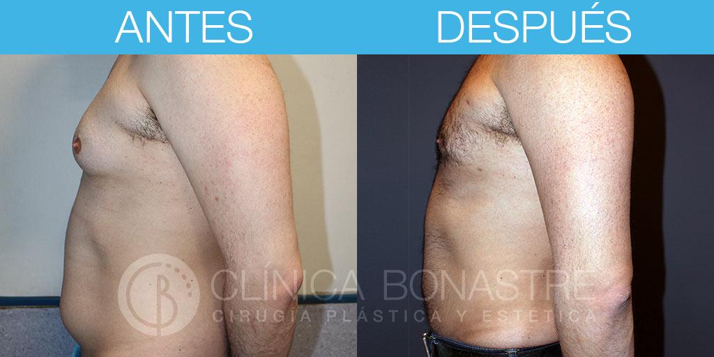 Ginecomastia y liposucción abdominal