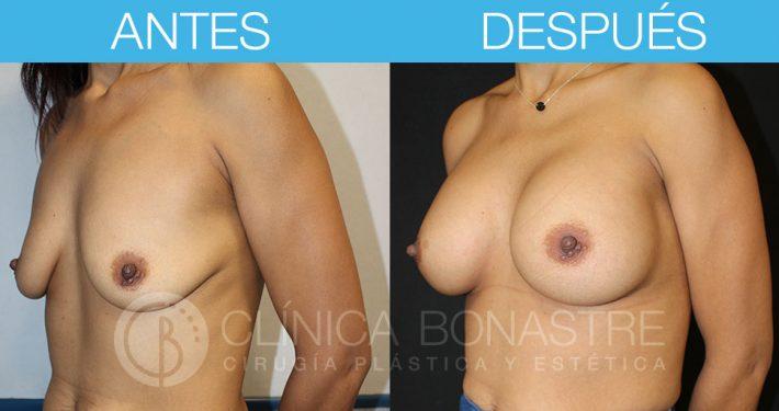 Mamoplastia de aumento con implante anatómico de 320cc
