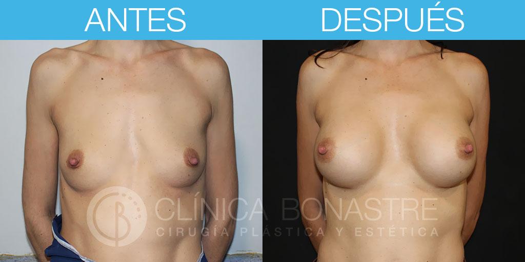 Mamoplastia de aumento con implante anatómico de 345cc