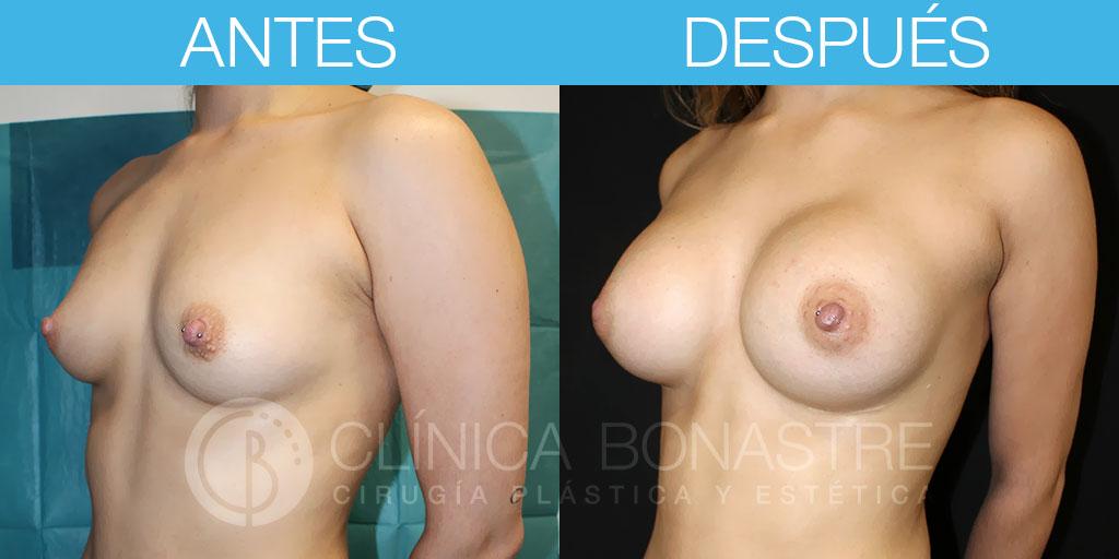Mamoplastia de aumento con implante redondo de 335cc