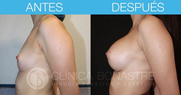 Mamoplastia de aumento con implante redondo de 350cc