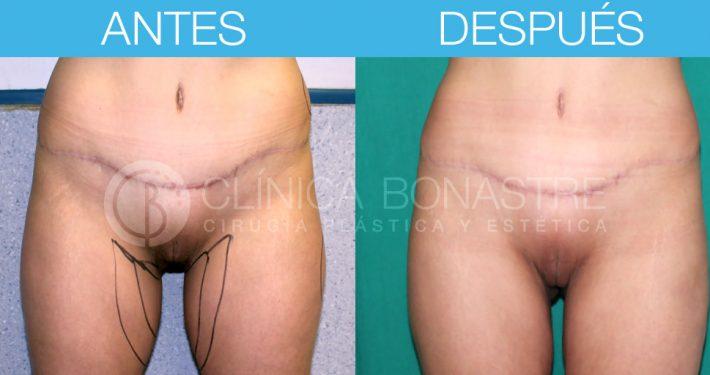 Liposucción muslos y espalda