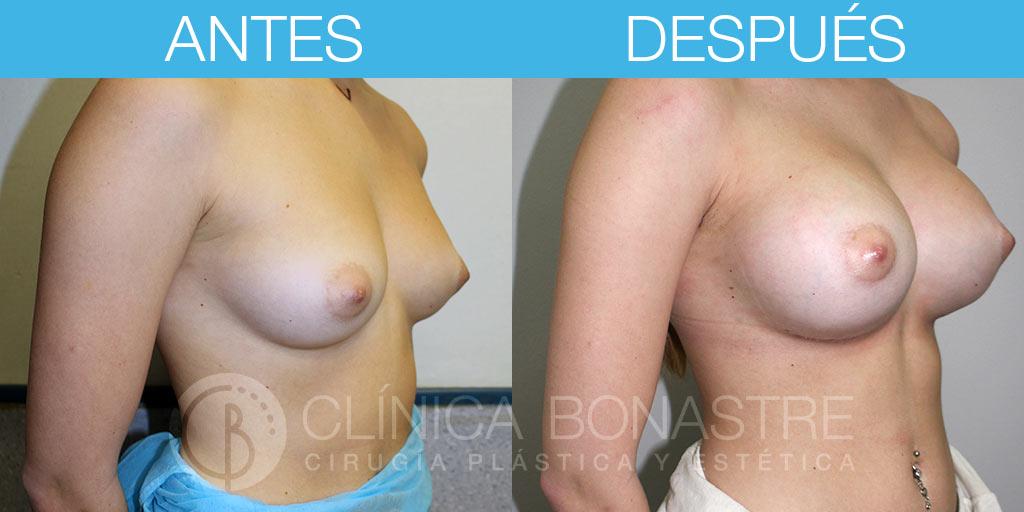 Mamoplastia de aumento, implante anatómico de 270cc