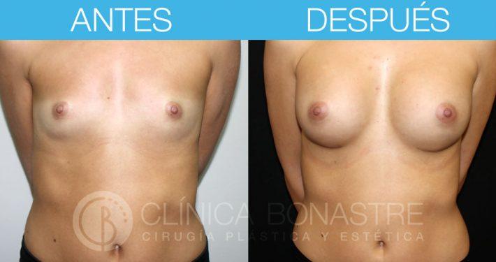 Mamoplastia de aumento, implante redondo de 335cc