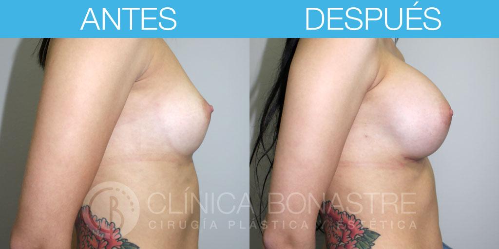 Mamoplastia de aumento, implante redondo de 390cc