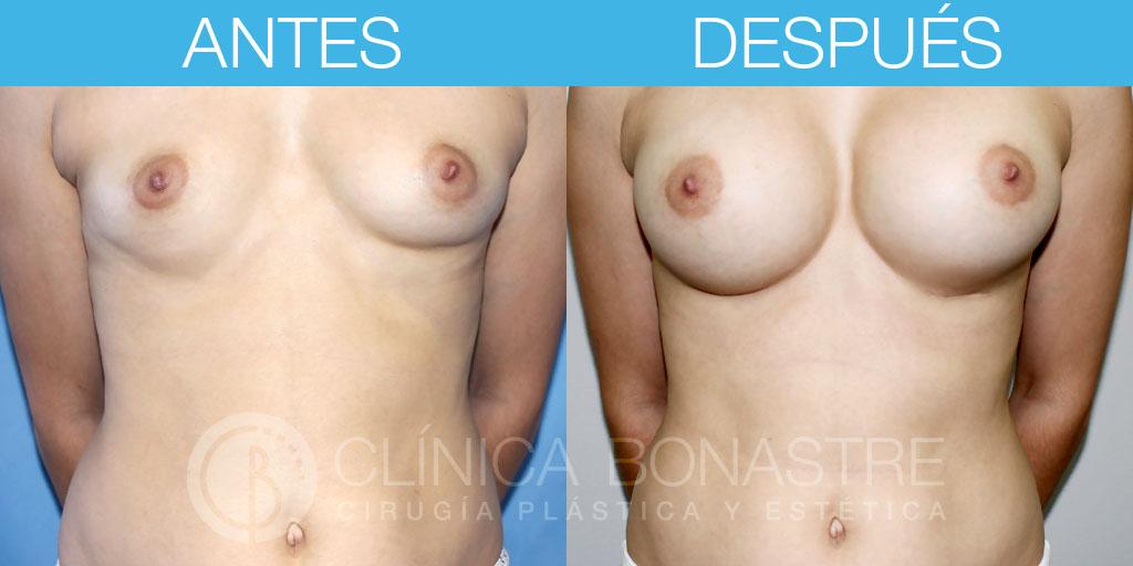 Mamoplastia de aumento, implante redondo de 360cc